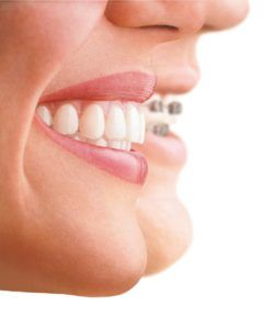 Costo Tratamiento Ortodoncia