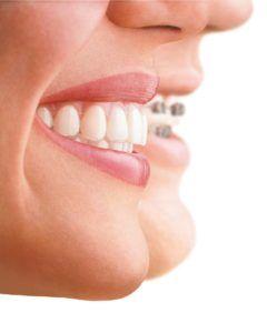 Plan de Ortodoncia