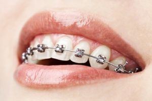 Tratamiento Ortodoncia Invisible