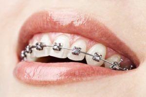 Brackets de Ortodoncia
