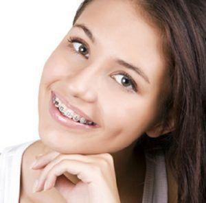 Precio de Ortodoncia